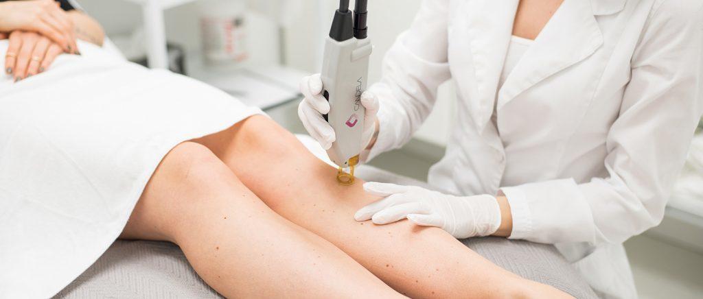 laser treatment malaysia